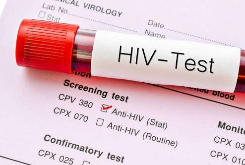نمونه-آزمایش-ایدز