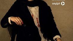 گریم جنجالی رعنا آزادی در سریال زخم کاری+عکس دیده نشده