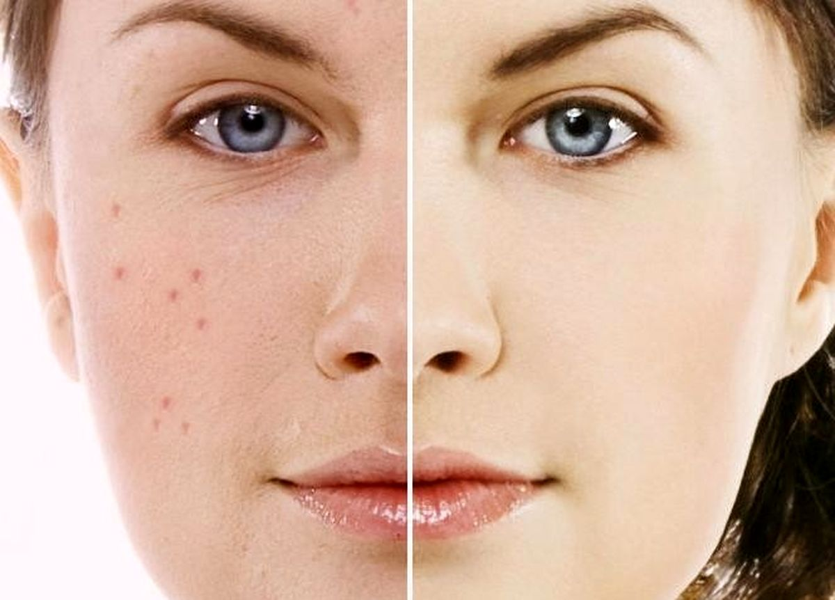 درمان فوری جوش صورت!